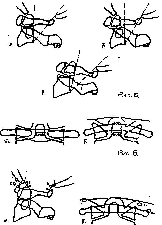 Manifestare a vertebrei occipital