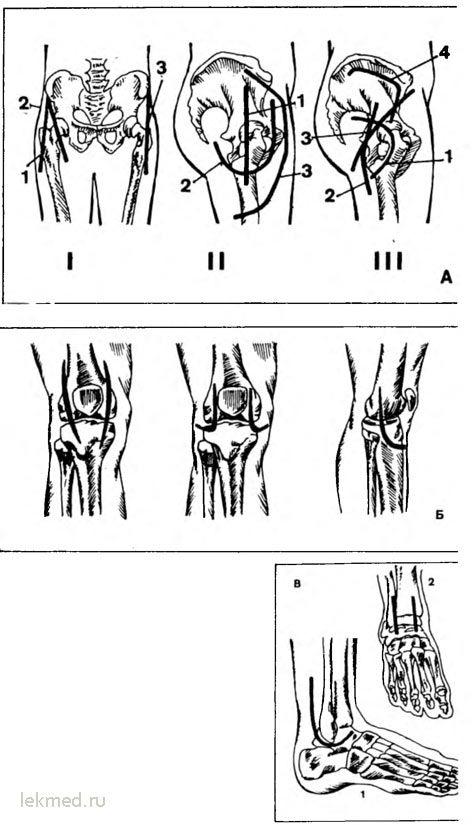 Артротомия суставов