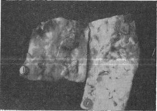 Язвенный атеросклероз аорты