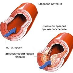 Атеросклероз - поражение сосудов