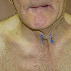 sindromul bulbar - patologia nervilor cranieni