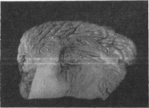 Очажок кровоизлияния в зубчатом ядре мозга
