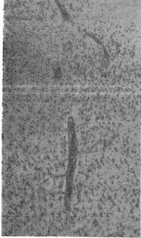 Капиллярофиброз в коре больших полушарий головного мозга