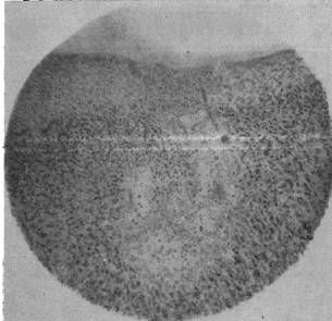 Мелкие очажки запустения в коре больших полушарий