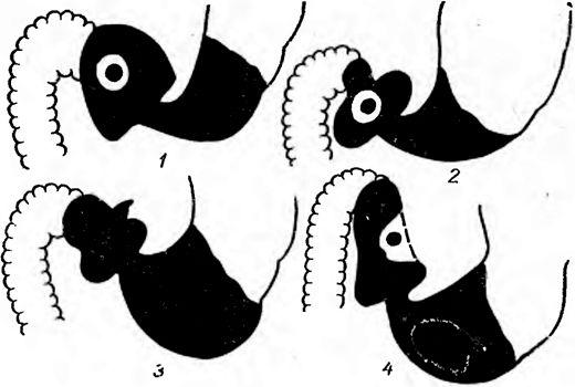 Выпячивание контура и деформация луковицы двенадцатиперстной кишки