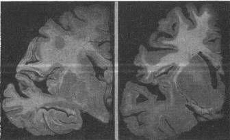 атрофия извилин и расширение борозд мозга