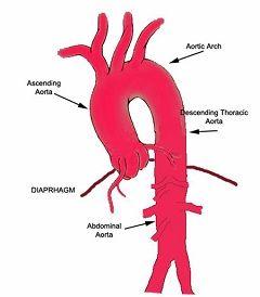 Дуга аорты