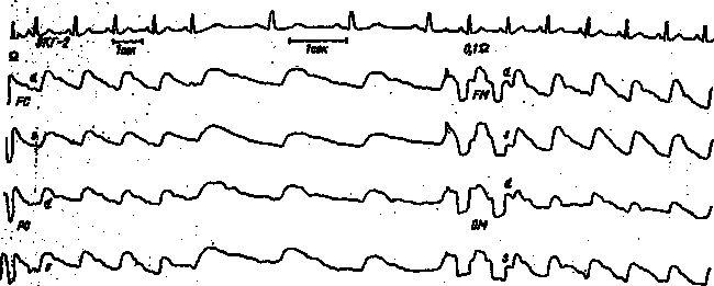 REG pacient K. cu o leziune a arterei cerebrale anterioare stâng