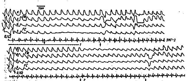REG pacient K. cu leziuni ale arterei cerebrale anterioare stâng