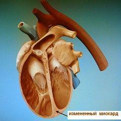 clasificarea cardiomiopatii