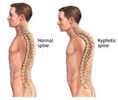simptome cifoză