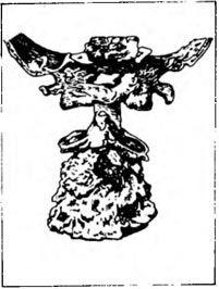 Клиппеля-Фейля cиндром