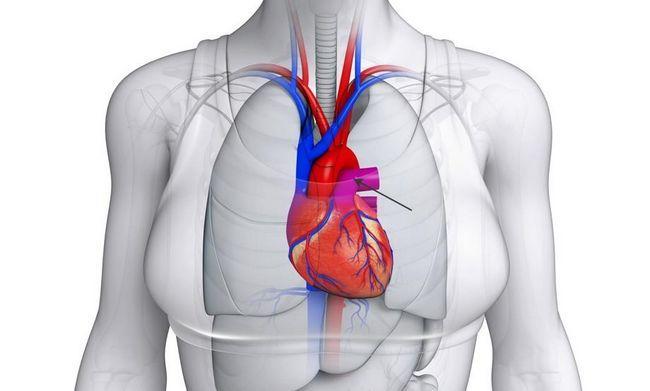 artera pulmonară: structura, funcția