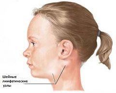 Лимфаденит - заболевание лимфатической системы