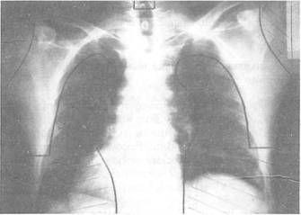 Радикальное мантиевидное облучение. Границы поля облучения на рентгенограмме.