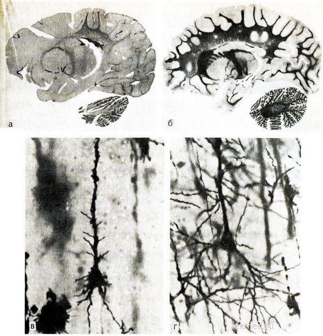 secțiunea sagital a creierului