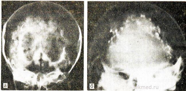 calcificări în jurul ventriculi și hidrocefalia