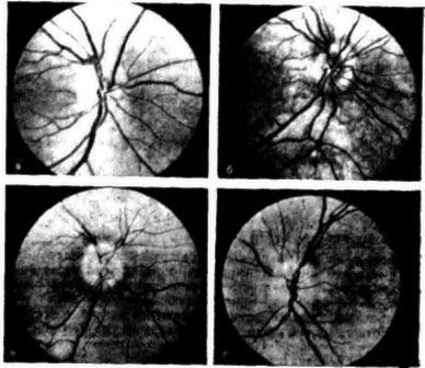 Imagine de edem fundusul discului optic