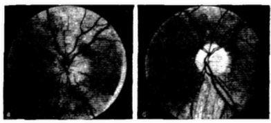 Imaginea a fundului de ochi în neuropatie optică ischemică
