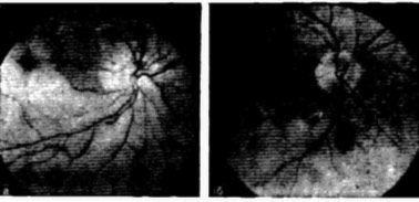 Imaginea a fundului de ochi
