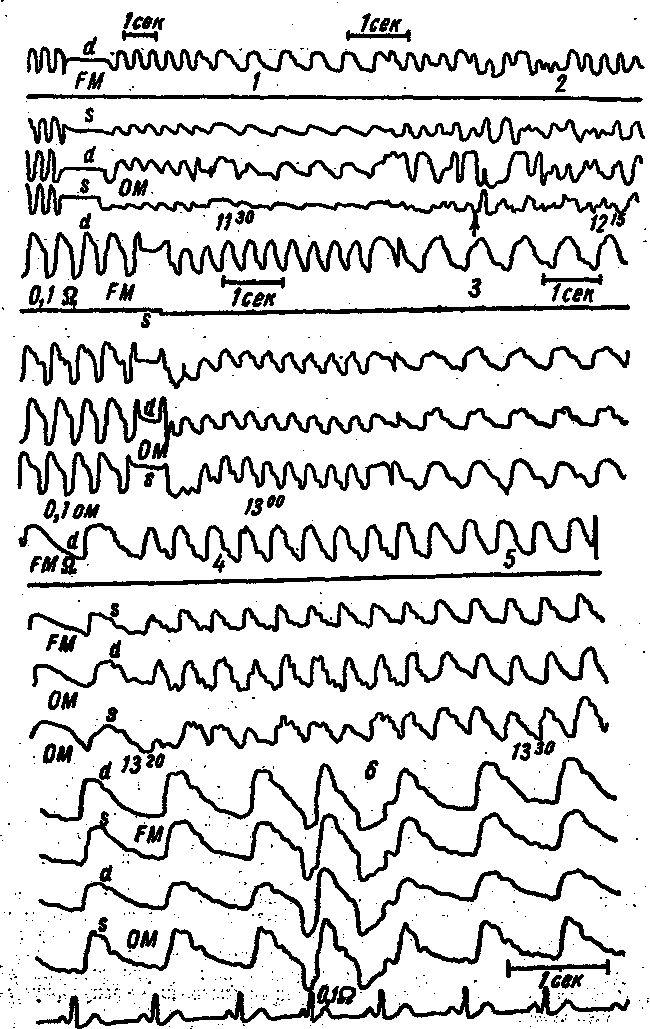 3. Dinamica REG pacient cu hipoplazie și descărcare anormală a arterei vertebrale din stânga