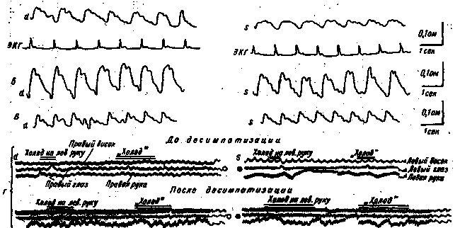 pacient Dynamics REG AF cu ocluzie completă a arterei carotidă internă stângă