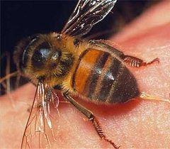 Первая помощь при укусе пчелы