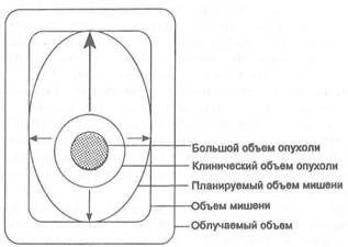 изображение различных объемов, подлежащих учету при лучевой терапии