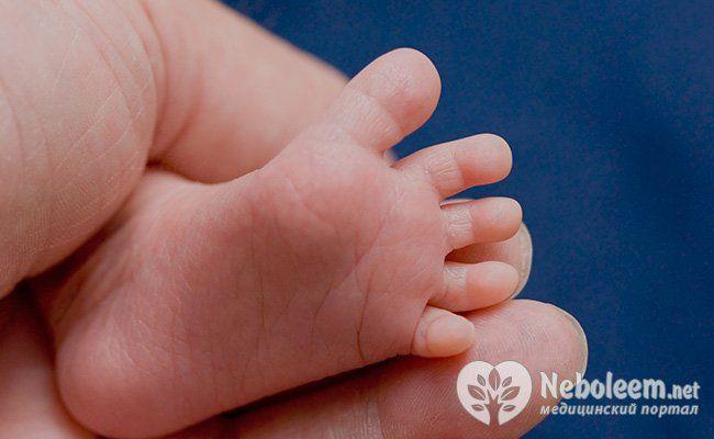 Почему дети чаще страдают плоскостопием?