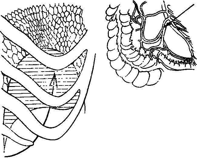 Ligatura v. ileocolica la pylephlebitis