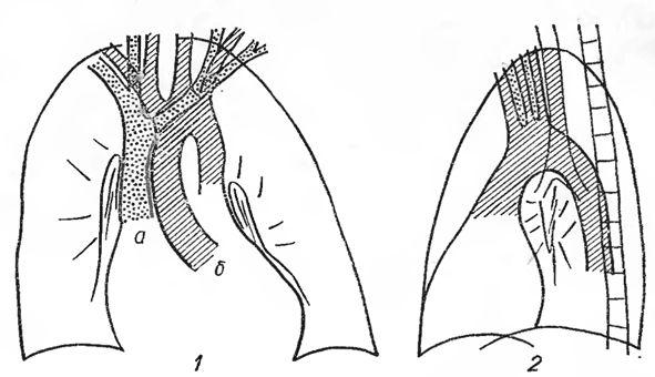 navele brachiocefalic