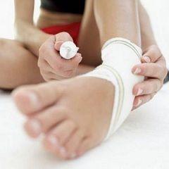 Растяжение мышц: как лечить