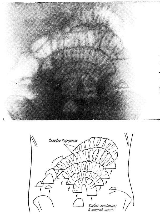 Рентгенологическая картина при спаечной непроходимости