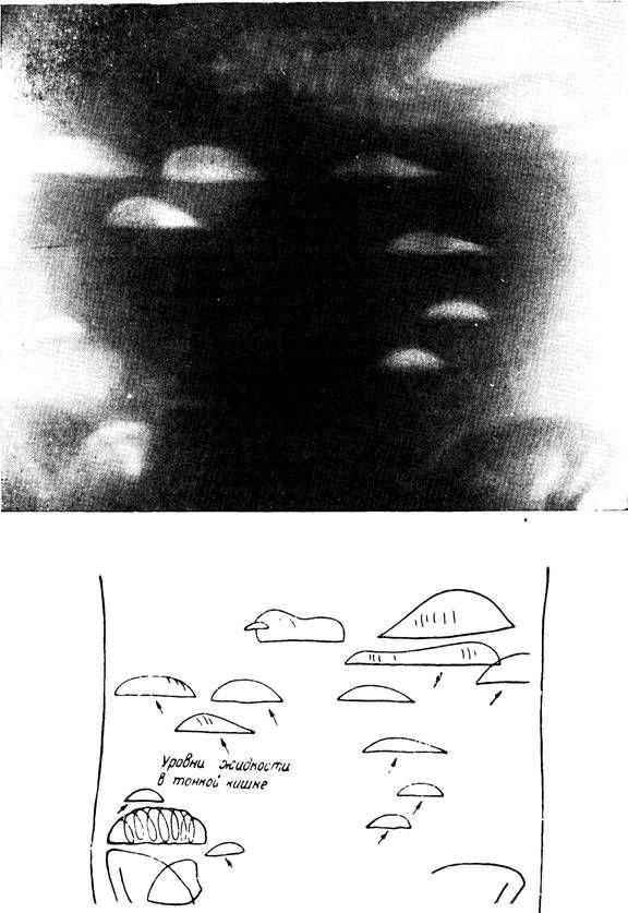Рентгенологическая картина при завороте тонких кишок