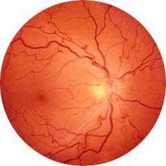 Ретинопатия — невоспалительное повреждение кровеносных сосудов, снабжающих сетчатку глазного яблока