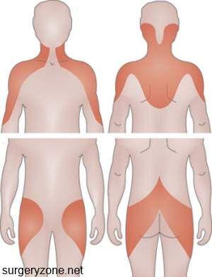 polimialgie reumatică