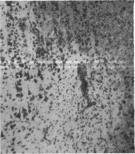 очажок запустения с гибелью нервных клеток и пролиферацией глии