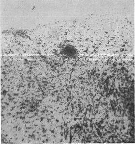 оспалительный очажок в продолговатом мозгу