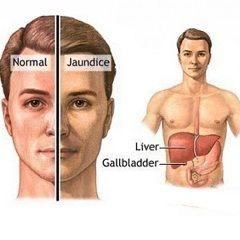 Motivul pentru Gilbert sindromul - defect de gena responsabila pentru glyukuroniltransferazy funcției