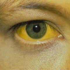 Icter - principalul simptom al sindromului Gilbert