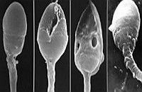 Спермограмма