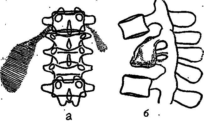 Постспондилитическая фаза туберкулезного спондилита