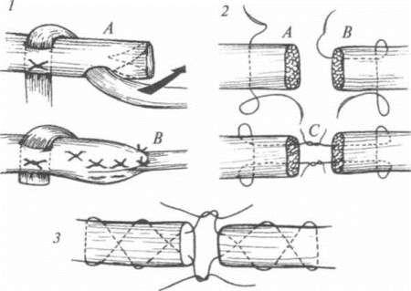Сшивание сухожилий