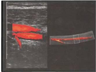 Superficial arterei femurale și femurale superficiale Viena cu influxul