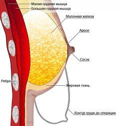 operația de reducere a sânilor este numit mamoplastia de reducere