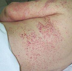 Vasculita - inflamația vaselor de sânge