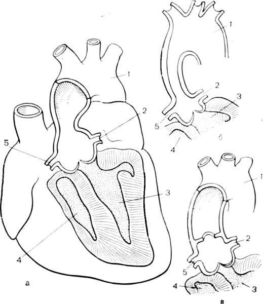Forma anatomica stenoza aortica supravalvulara