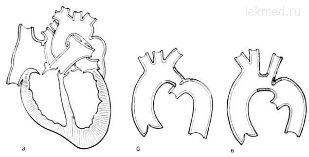 Formele natomicheskie de coarctație aortică