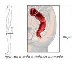 Вторичный зуд в заднем проходе - симптом сопутствующего заболевания
